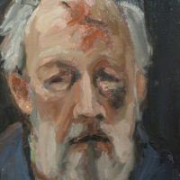 George Wallace - Self Portrait after Melanoma Surgery, oil painting